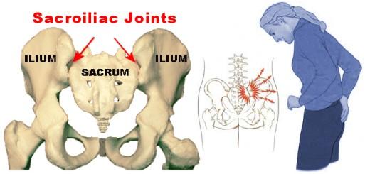 sacroiliac
